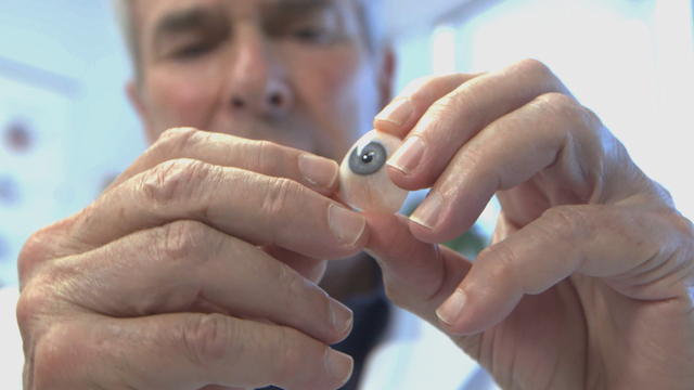 Ocularist Fred Harwin holds a prosthetic eye he's hand-painted for a patient.